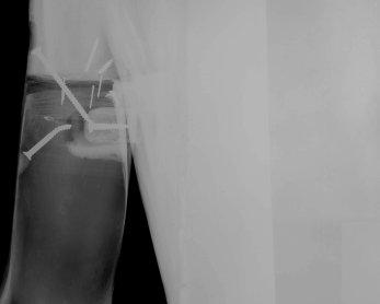 Radiografía de una obra de la colección